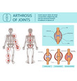 arthrosis of joints vector image