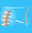 lumbar puncture realistic medical scheme vector image