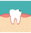 tooth sectional view tooth decay vector image