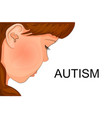 face of an autistic child vector image