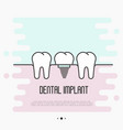 dental implant concept two healthy teeth vector image