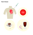 Heart Disease Concept on A White Background vector image