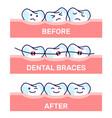 cartoon kawaii funny teeth vector image