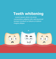 professional teeth whitening vector image vector image