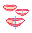 effect of whitening toothpaste is shown on vector image