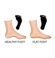 Feet healthy and flat feet footprint vector image