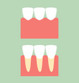 healthy incisor tooth on gum for dental care vector image vector image